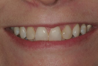 Veneers and Invisalign