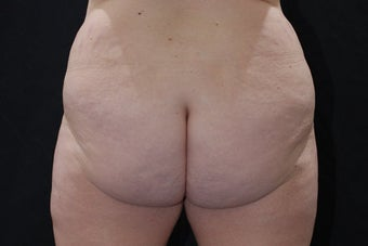 Buttock Augmentation through Fat Transfer before 423709