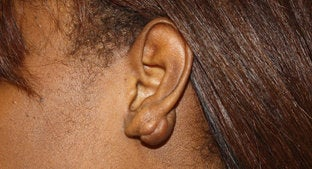Earlobe Keloid  494466
