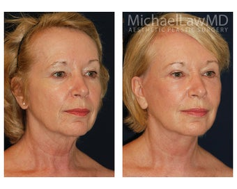 Cheek Augmentation after 415266