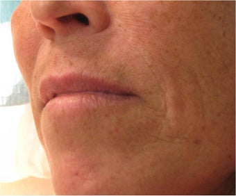 Juvederm to Upper Lip before 77462