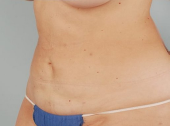 Smart Lipo after 100342