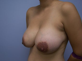 Breast Implant Removal 532597