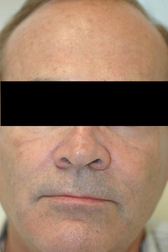 Dysport (Botox) for Forehead Wrinkles, Los Angeles, CA after 424745