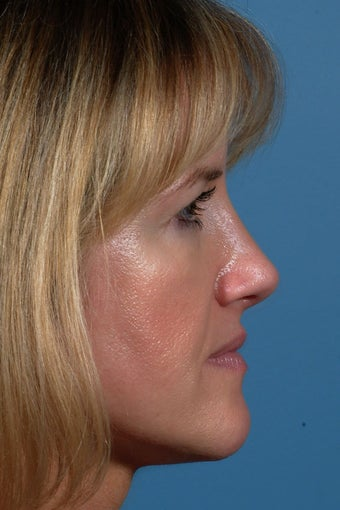 Rhinoplasty after 87108