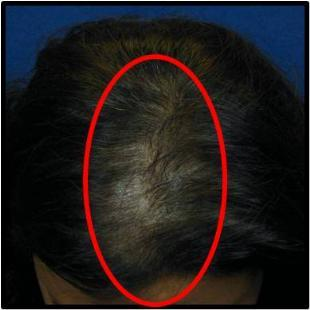 Female Hair Restoration 530044
