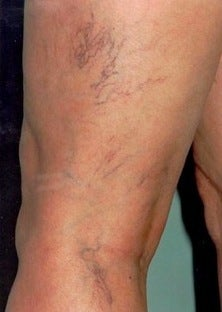 Sclerotherapy before 370422