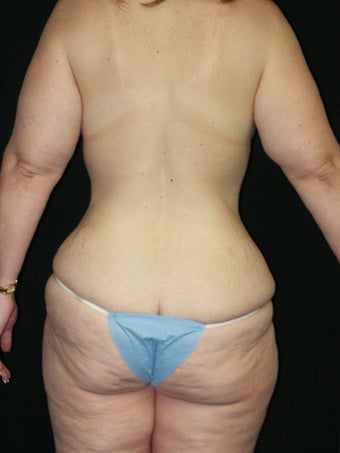 Belt Lipectomy and Breast Lift 379775