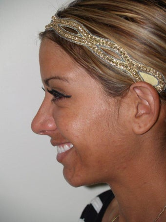 Revision Rhinoplasty 528759