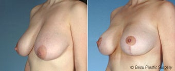 Breast Lift before 146915