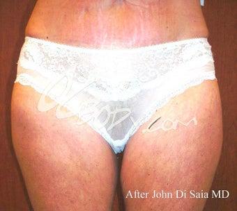 Inner Thigh Lift after 84026