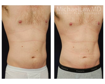 Liposuction after 392463