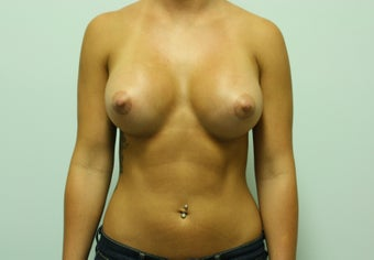 Breast Augmentation after 232466