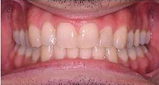 Invisalign after 353426