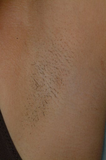 Laser Hair Removal Before  After Pictures - Realself-3595