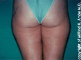 Liposuction before 542415