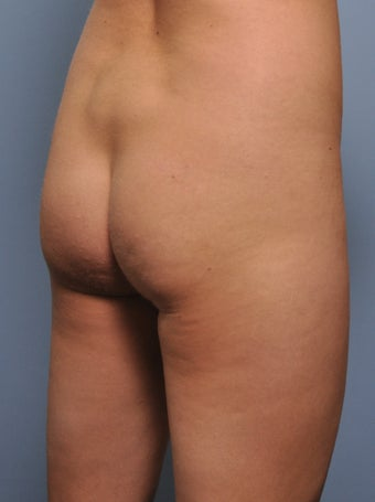 Buttock Augmentation 531978