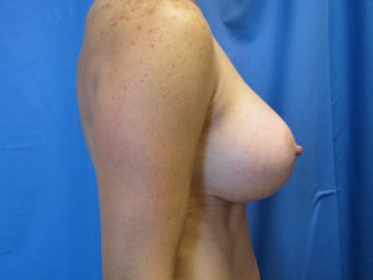 Breast Augmentation  after 364617