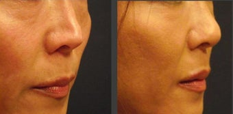 Asian Rhinoplasty before 388961