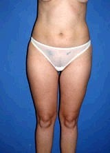 Liposuction Surgery after 145897