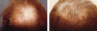 Medical treatment for hair loss (no surgery) before 369179