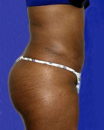Abdominal liposuction after 135026