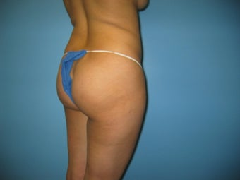 buttock augmentation (Brazilian buttock lift) before 379020