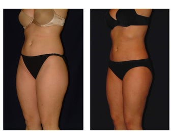 Liposuction before 286636