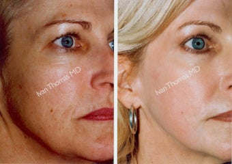 Non-Surgical Face Lift- Exoderm  before 242972