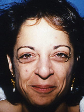 Upper and Lower Blepharoplasty before 249789