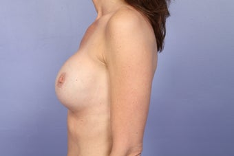 Breast Revision after 307229
