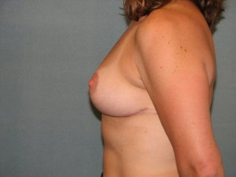 Breast Lift after 334556