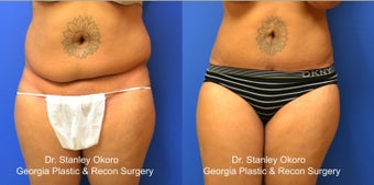 Mini Tummy Tuck before 568398
