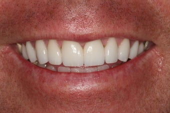 Porcelain Veneers/ Smile Makeover after 343714