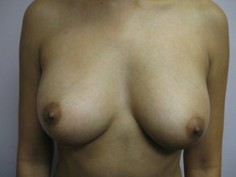 Breast Augmentation before 382786
