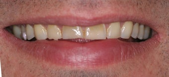 Veneers along with crowns before 48661