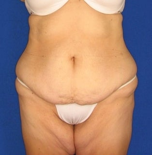 Tummy Tuck before 312327