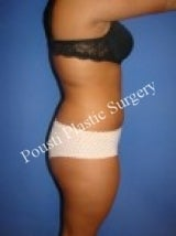 Liposuction 632168