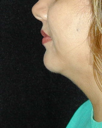 Chin Implant Surgery after 101325