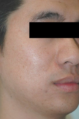 Laser Acne Treatment before 89124