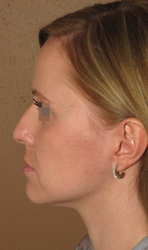 Rhinoplasty before 270687