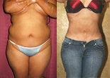 Tumescent Liposuction before 304338
