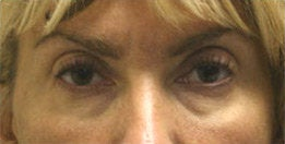 Eyelid Surgery (Blepharoplasty) before 141474