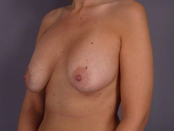 Breast Revision Surgery before 306994