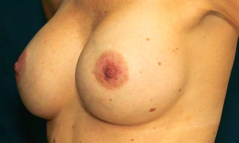 Breast augmentation with silicone gel implants