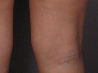 Sclerotherapy to Leg Veins
