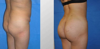 Brazilian Butt Lift (Fat Transfer) before 256419