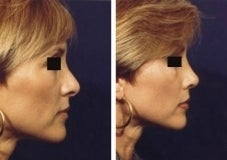 Rhinoplasty revision before 130777