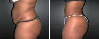 Abdominoplasty before 110000