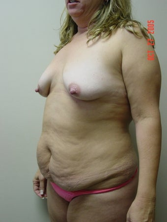 tummy tuck, flank liposuction, breast augmentaion & breast lift 319724